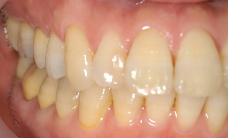 かぶせ物の形も色もあっていて、天然の歯のようです