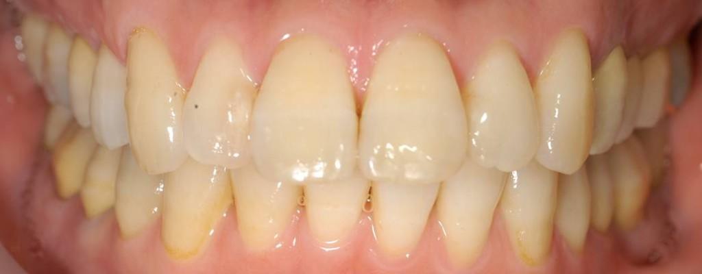 むし歯もしっかり除去し、きれいに詰め直しました