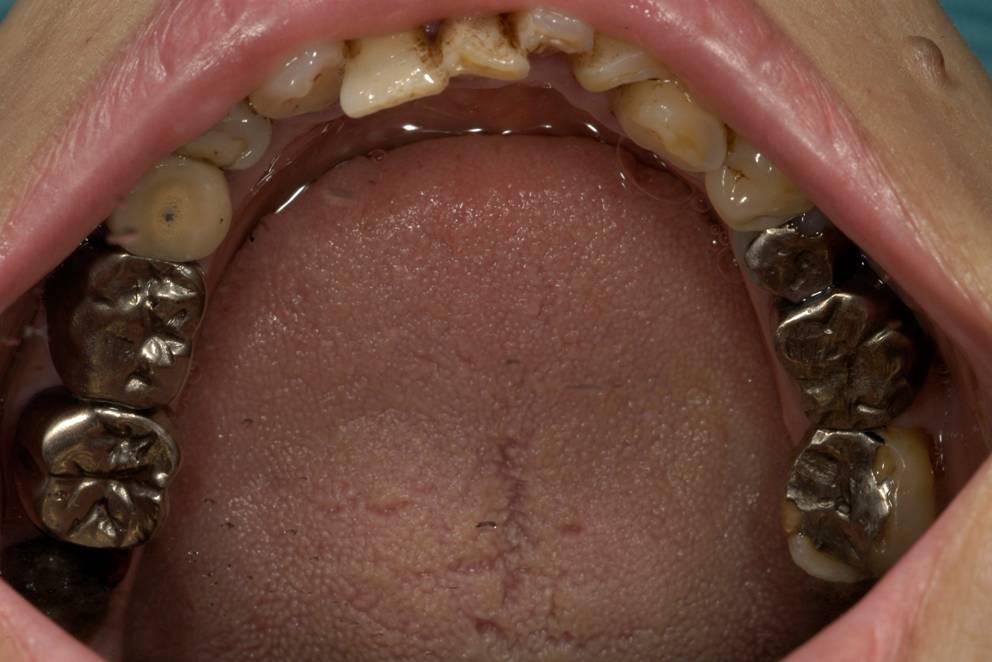 下の歯のかみ合わせの部分です。銀色の詰め物の隙間からむし歯になっています。