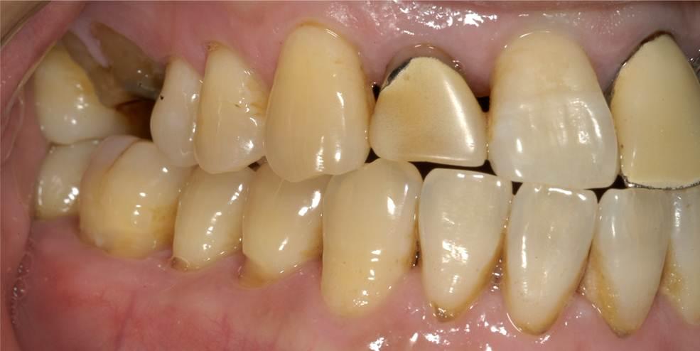 前歯のかぶせものがあっていないため、すきまからむし歯になっています。