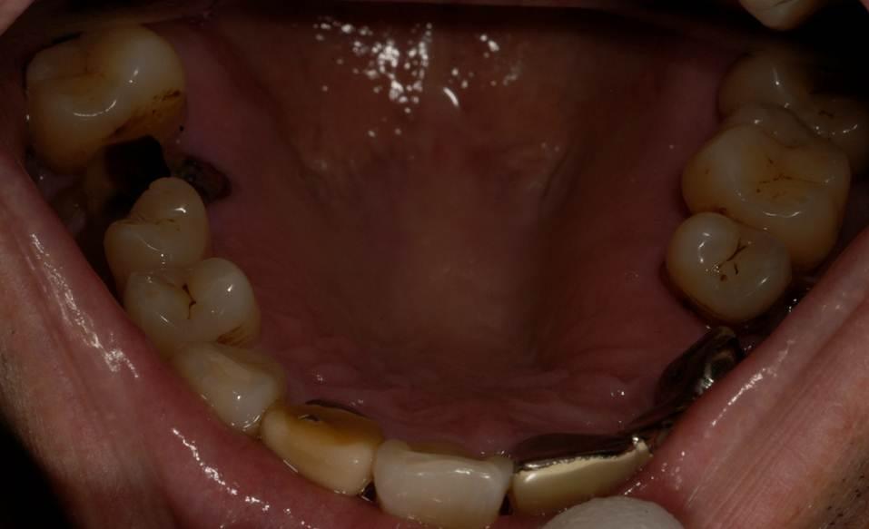 むし歯がすすんで、歯がほとんど残っていない「残根」の状態の歯があります。