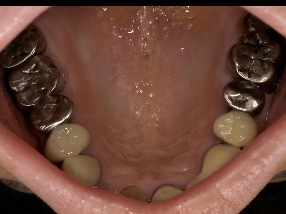 上の歯のかみ合わせの部分です。