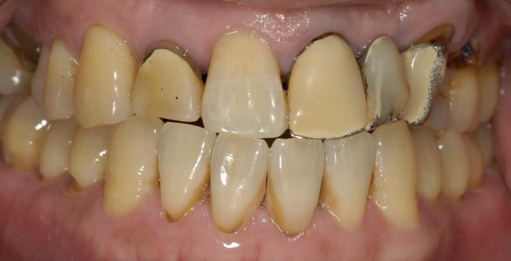 最初に来院された時の状態です。 かぶせものがあっていないため、歯ぐきもはれています。