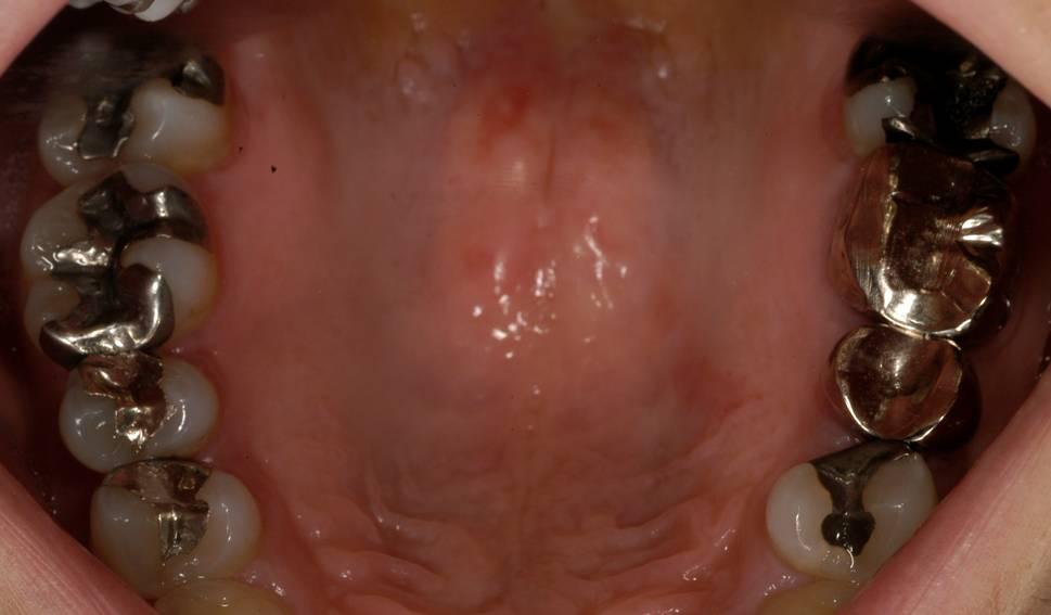 銀色の詰め物(インレー)と、天然歯の段差から虫歯になっていました。 かぶせ物と歯との隙間からも虫歯になっていました。