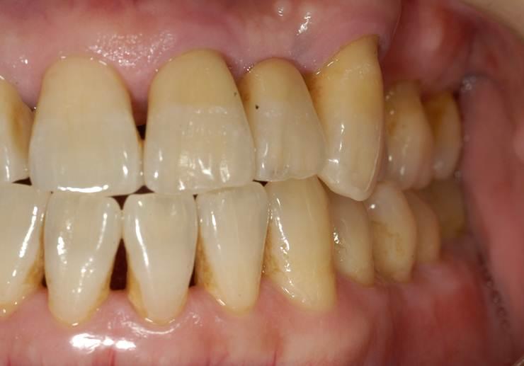 どの歯が天然の歯か、見分けがつかないほどです。