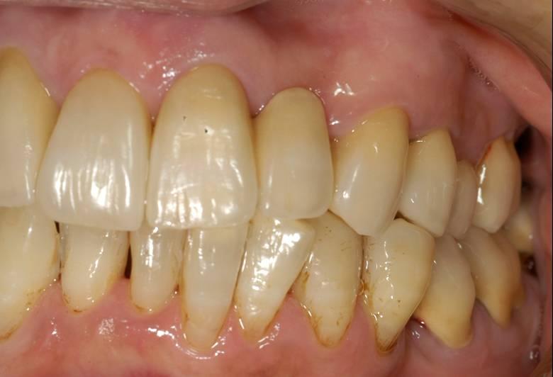 むし歯の治療が終わり、白いかぶせ物を選んだ為、とてもきれいな状態です。