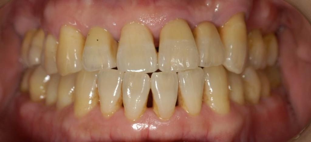治療終了しました。 見た目はもちろんですが、歯磨きの成果もあり、歯ぐきがひきしまり、とてもきれいです。 治療に、患者さまの協力は不可欠です。