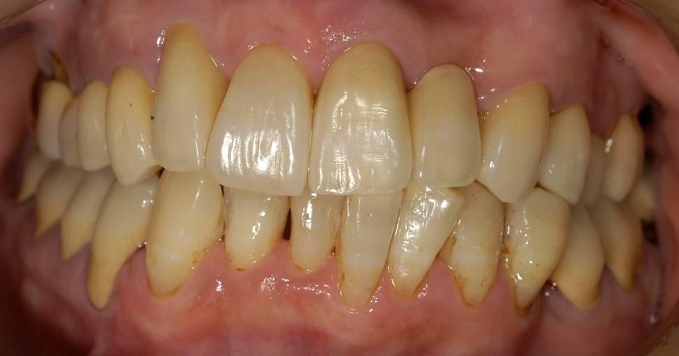 歯ぐきの状態もよくなり、とても磨きやすくなりました。きれいな歯ぐきです。