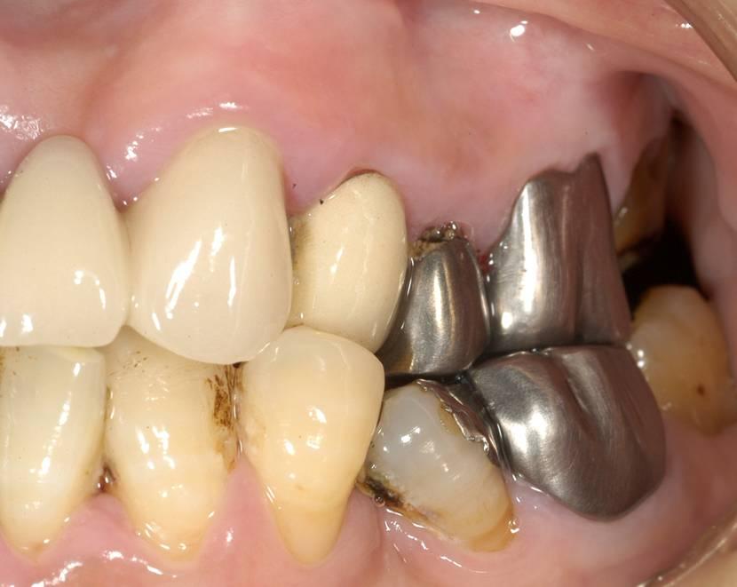 かぶせ物とご自身の歯との隙間にむし歯ができています。