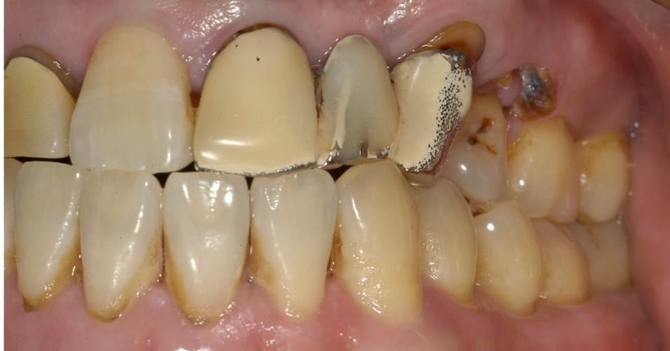 天然の歯の色と合っていないので、不自然な印象です。