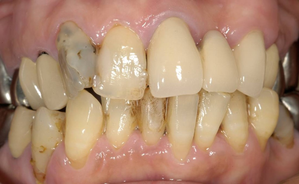 あわないかぶせ物や詰め物で、磨きにくく、汚れが残りやすいため、歯ぐきが腫れています。