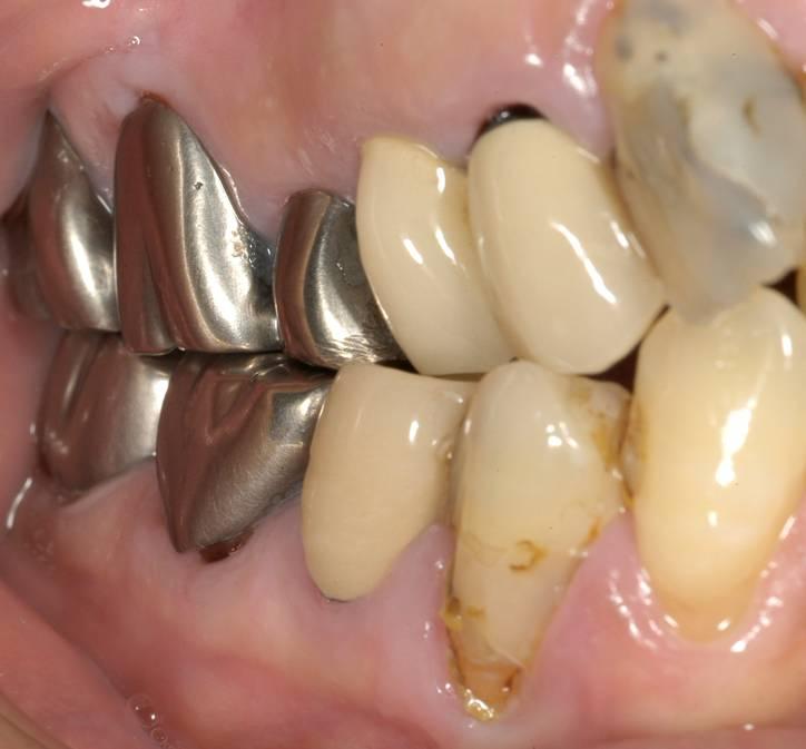 詰め物とご自身の歯との隙間にむし歯ができています。詰め物の色も変わってきています。