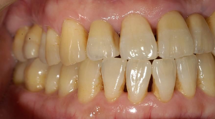 むし歯の治療が終わり、かぶせ直しました。